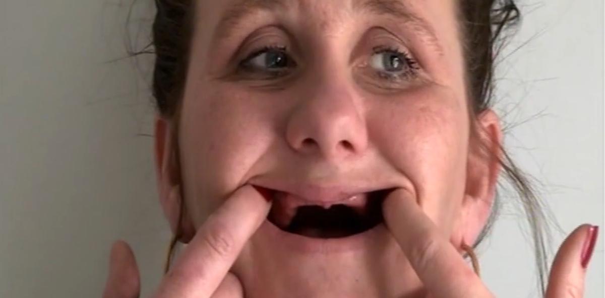Zahnarzt zieht während der Narkose alle Zähne
