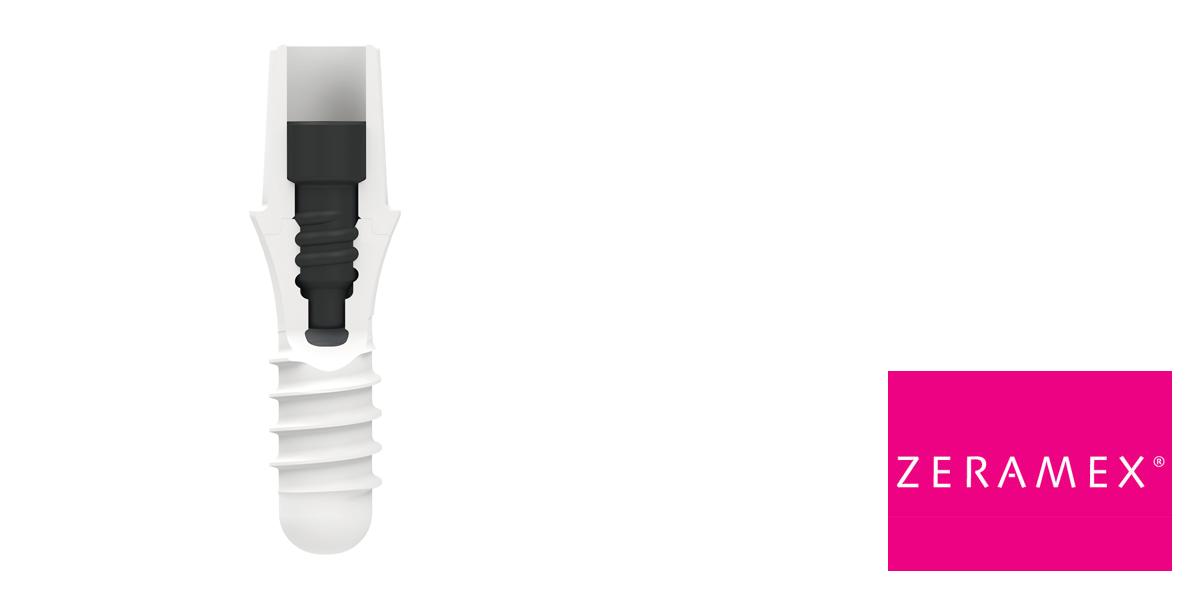 Dentalpoint AG erhält FDA-Zulassung für das ZERAMEX® P6 Implantatsystem