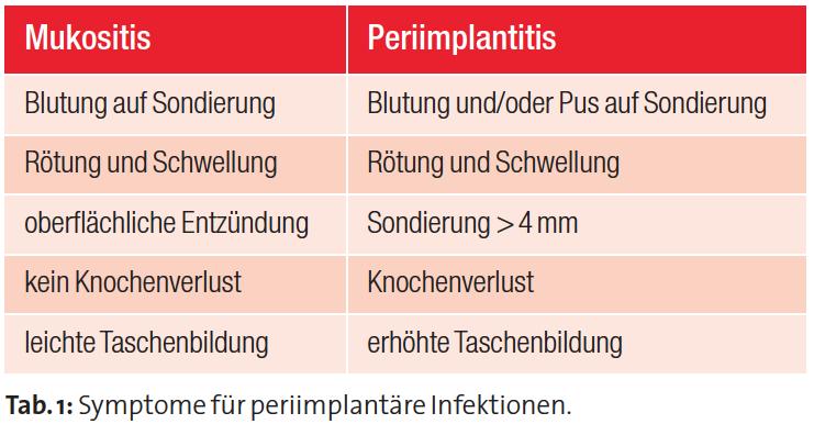 Tabelle Liebaug Periimplantitis
