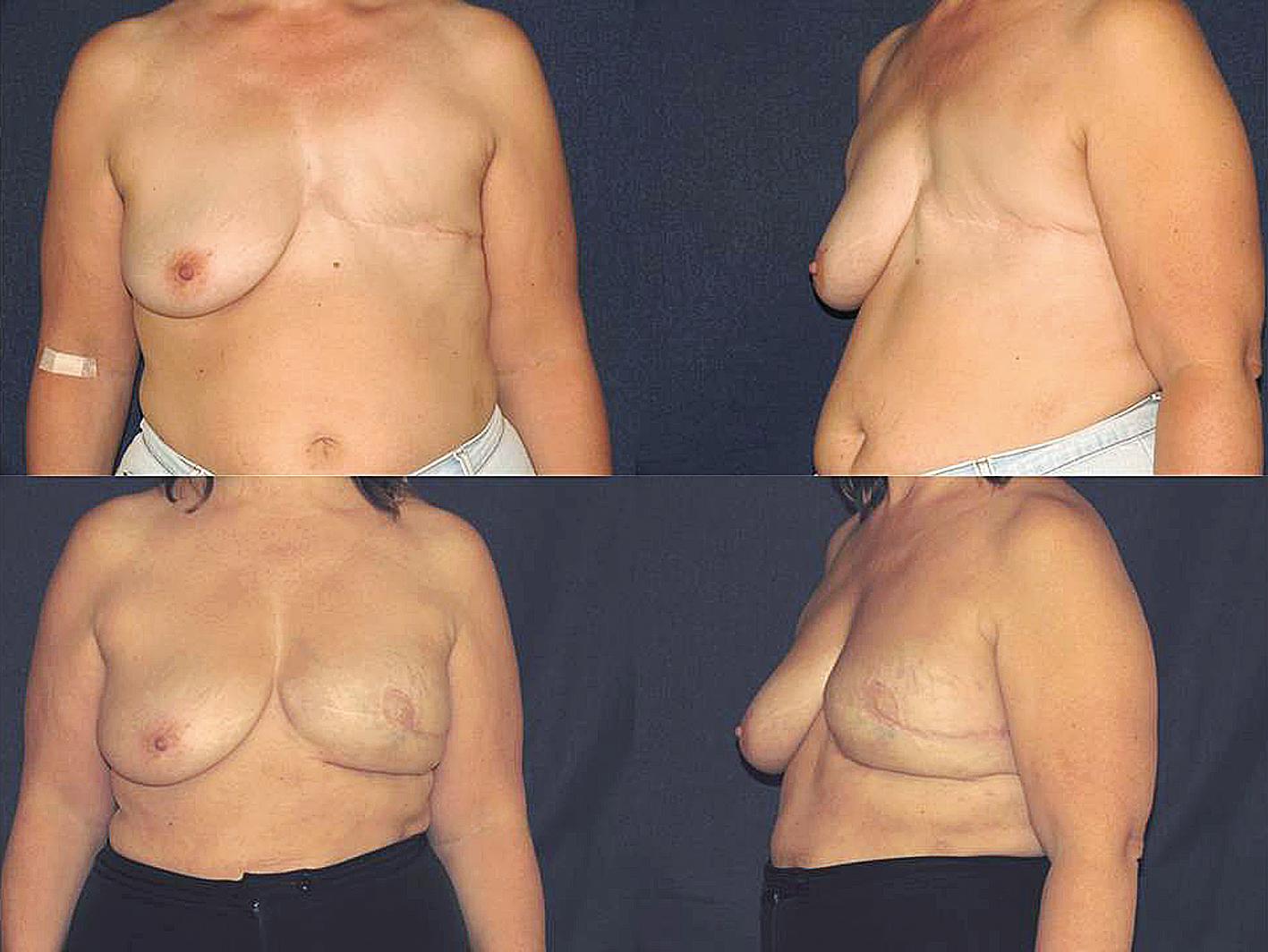 Brustrekonstruktive Chirurgie Ansatz