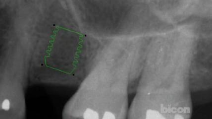 The Bicon SHORT Implant Surgical Technique