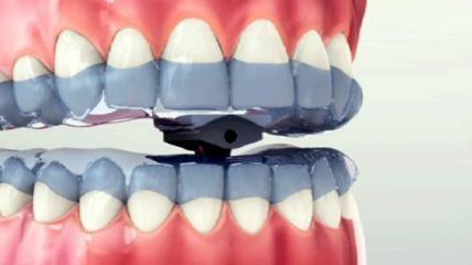 Scheu-Dental TAP®-Schiene