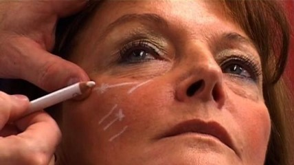 Ausschnitt aus der DVD – Unterspritzungstechniken