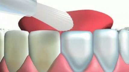 Mirawhite oxygen – Effektive Zahnaufhellung bei sensiblen Zähnen