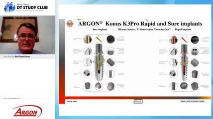 Argon Webinar: 3-D-Augmentation mit simultaner Implantation