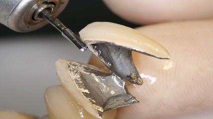 TriHawk Talon für eine effiziente Kronentrennung