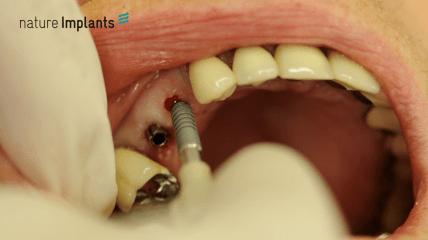 Einteilige Implantate von Nature Implants