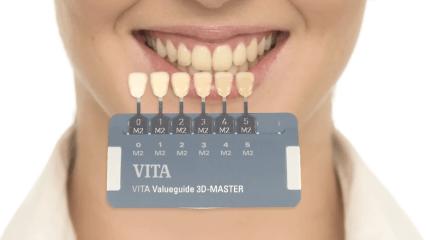 VITA Zahnfabrik: easy shade taking – Zahnfarbe nehmen mit VITA Linearguide