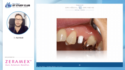 ZERAMEX® Webinar: Versorgung mit ZERAMEX® Keramikimplantaten