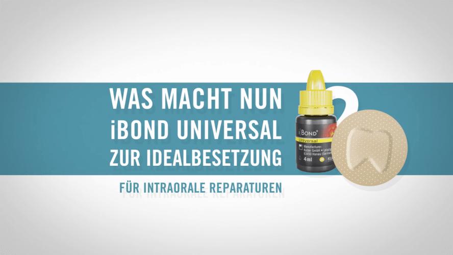 Intraorale Reparaturen mit iBOND Universal von Kulzer