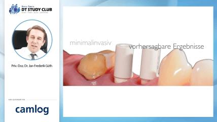 Webinar des Monats: Das Münchener Implantatkonzept im digitalen Workflow