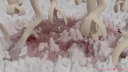 Osseointegration des BioWin! Keramik-Implantates