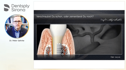 Dentsply Sirona Implants Webinar: Langfristig exzellente Frontzahnästhetik