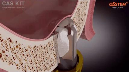 Innovative Chirurgie-Sets von Osstem Implant