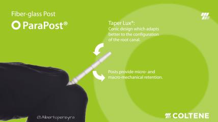 ParaPost– Der am häufigsten verwendete Wurzelstift in der Zahnmedizin