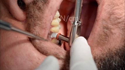 AWI Keramikimplantate: G-Line Implantat mit internem Sinuslift