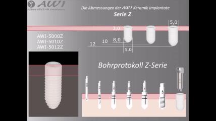 Bohrprotokoll zur AWI Implantat Z-Serie