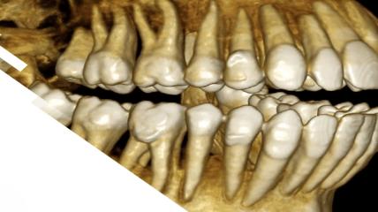 Erweiterte Behandlungsmöglichkeiten mit dem CS 8200 3D