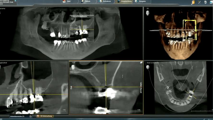 """Video des SDS-Webinars """"Floating Implants"""" – Keramikimplantate mit dem """"BISS"""""""